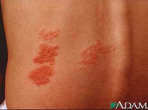 herpes-zoster-shingles-on-the-back