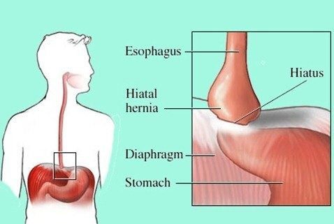 Hernia Hiato | sintomas