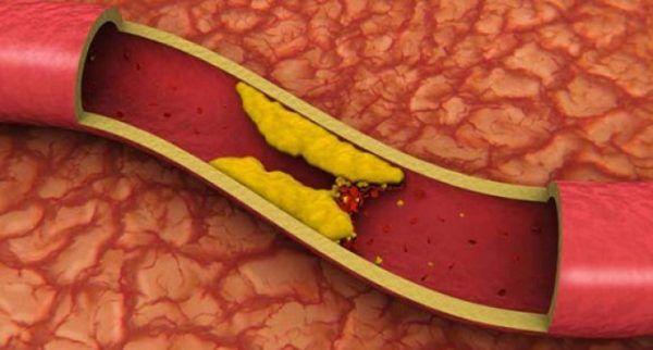 hipercolesterolemia-familiar-tratamiento