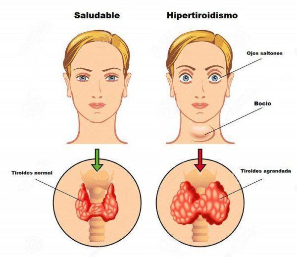 hipertiroidismo-bocio