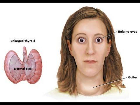 hipertiroidismo-ojos-saltones