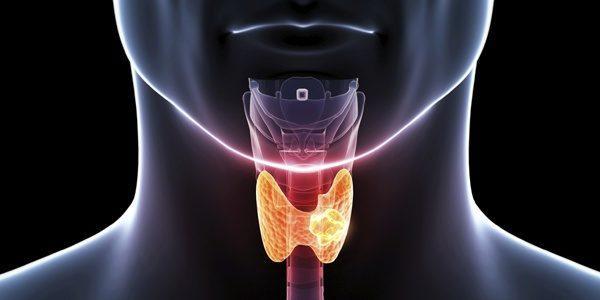 hipertiroidismo-problemas