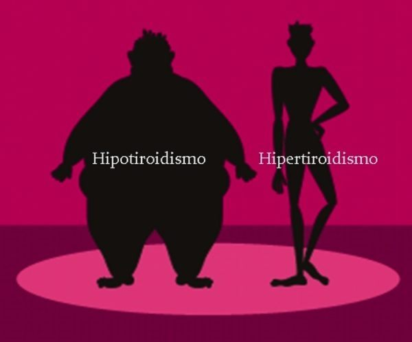hipotiroidismo-sintomas-hipo-vs-hiper