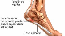 Fascitis plantar: síntomas, ejercicios y tratamiento