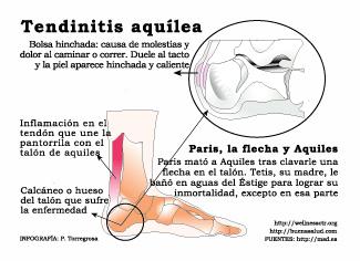Tendinitis de Aquiles