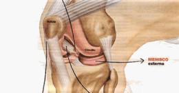 Cómo saber si tienes un esguince de rodilla o una rotura de ligamentos
