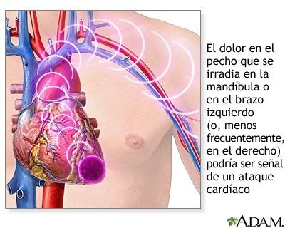 Los infartos atacan a cualquier edad