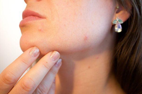 Infecciones virales piel