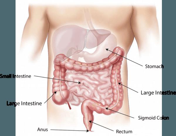 inflamacion-del-apendice