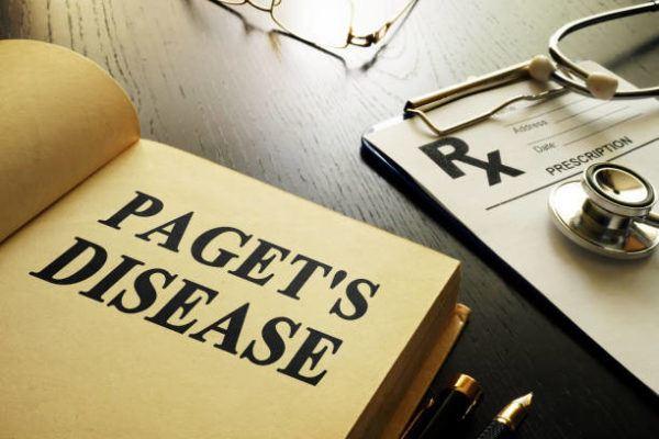 La enfermedad de paget que es sintomas tratamientos