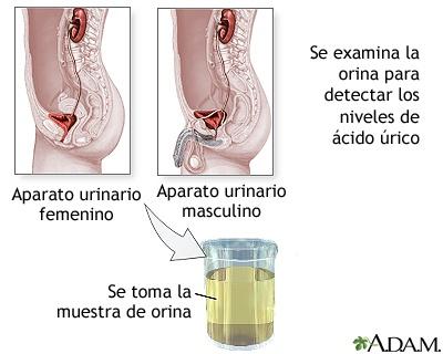 jarabe natural para la gota como empieza la enfermedad dela gota acido urico 5.7