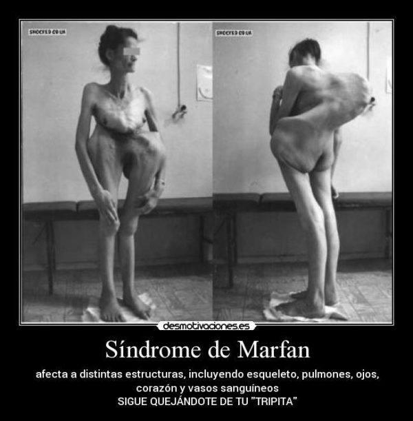 las-10-enfermedades-mas-misteriosas-marfan-2
