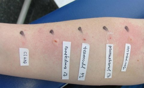 las-pruebas-alergia-de-primavera-brazo