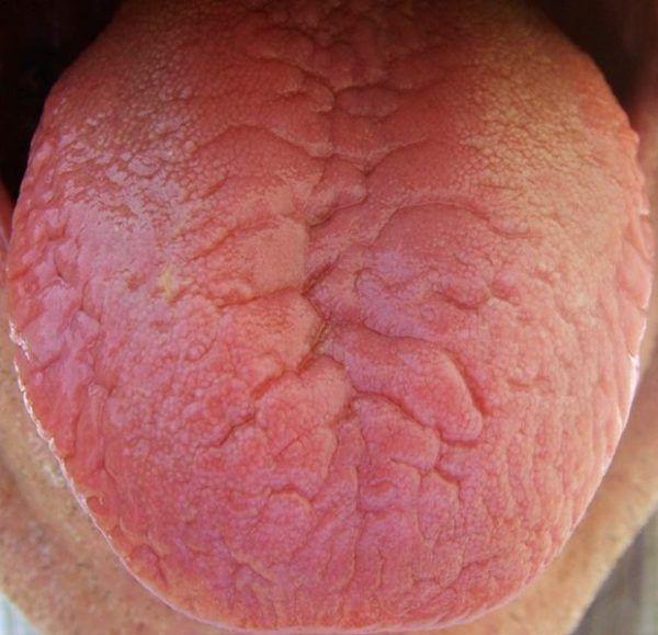 lengua-fisurada-variaciones
