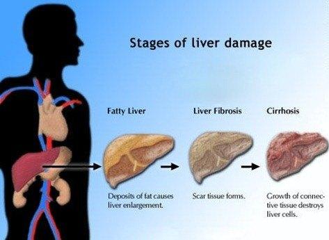 liverstages1