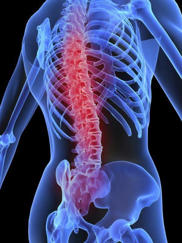 los-sintomas-de-la-embolia-pulmonar-tratamiento-daño-medula-espinal