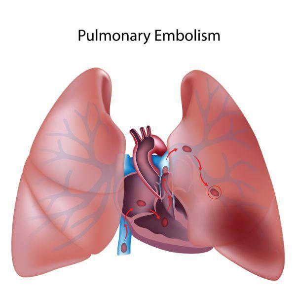 los-sintomas-de-la-embolia-pulmonar-embolia