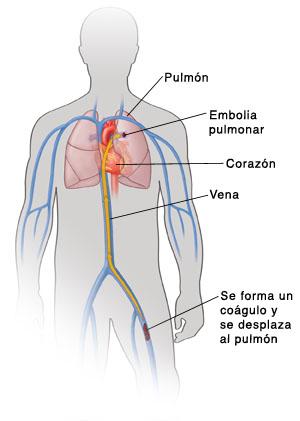 los-sintomas-de-la-embolia-pulmonar-proceso
