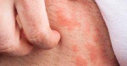 Manchas rojas en la piel que pican: Diagnóstico, causas y tratamiento