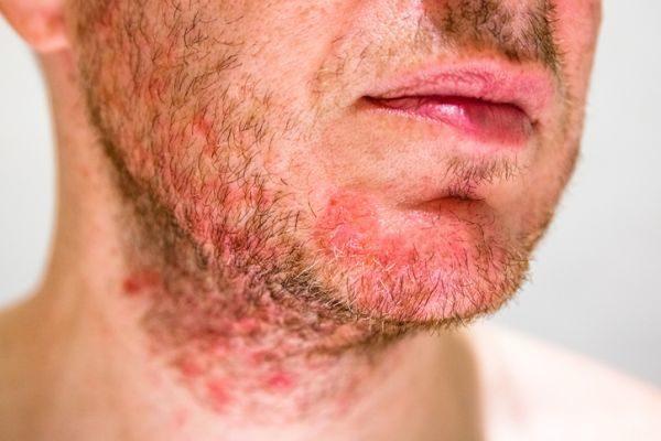 manchas-rojas-piel-pican-diagnostico-causas-tratamiento-dermatitis-istock