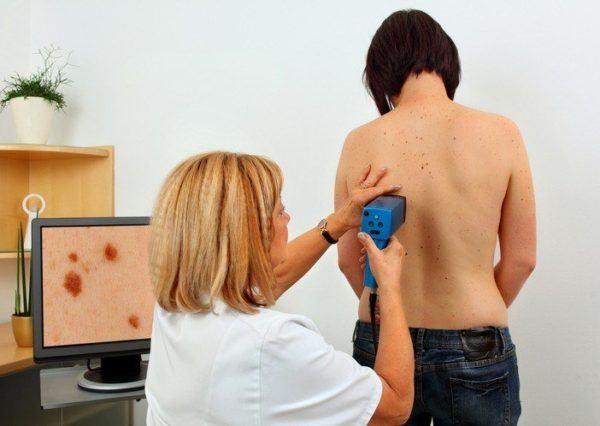Melanoma proceso medico