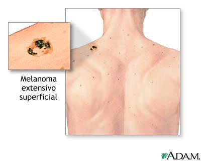 sintomas del cancer de piel