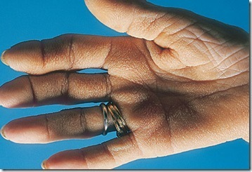 m-h_photo_of_acanthosis_nigricans_tripe_palm