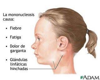El tratamiento del esguince de la columna vertebral