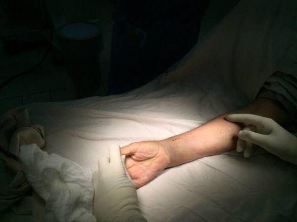 muneca-abierta-medico