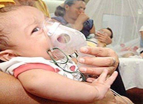 Causas neumonia en niños