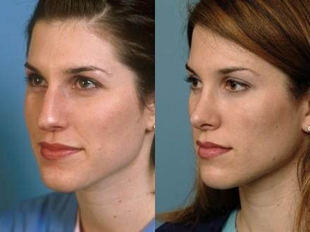 operacion-de-nariz-o-rinoplastia-antes-y-despues