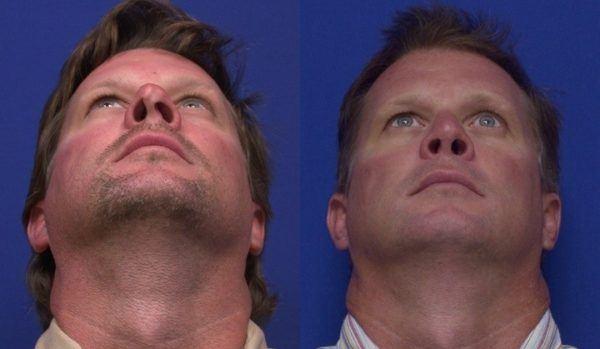 operacion-de-nariz-o-rinoplastia-como-se-realiza