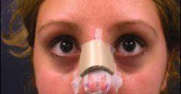 Rinoplastia: Operación de Nariz o tratamiento de cirugía facial