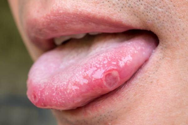 Por que salen ulceras bucales causas
