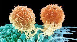 Linfoma: Qué es, tipos, causas, síntomas, tratamientos, secuelas del linfoma