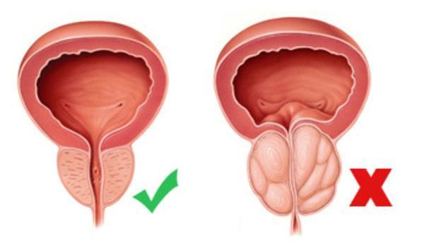 potastitis-sintomas-y-tratamiento
