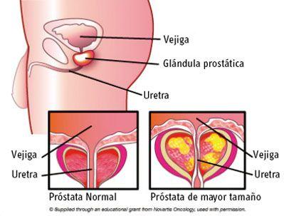 potastitis-sintomas-y-tratamiento-inflamacion
