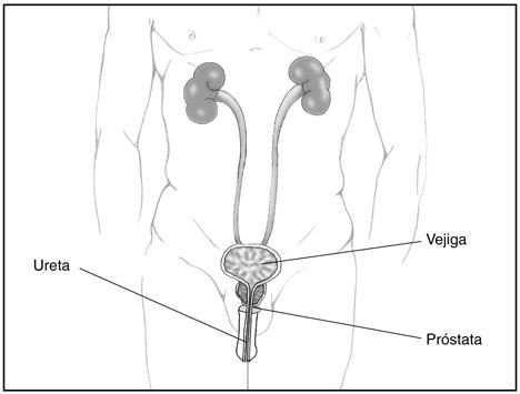 potastitis-sintomas-y-tratamiento-tracto-urinario