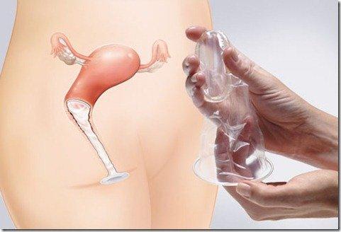 preservatico femenino