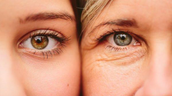 problemas contorno de ojos