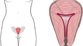 Progesterona : Qué es y qué funciones tiene