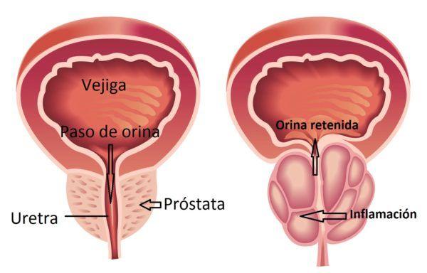 prostata-inflamada-uretra-bloqueada