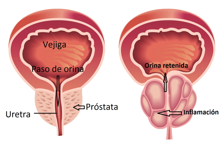 Prostatitis - 10 síntomas de que la próstata está inflamada