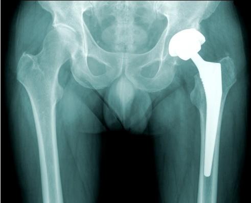 protesis-cadera