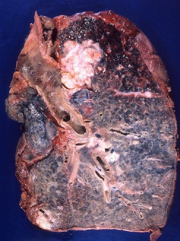 pulmon con cancer