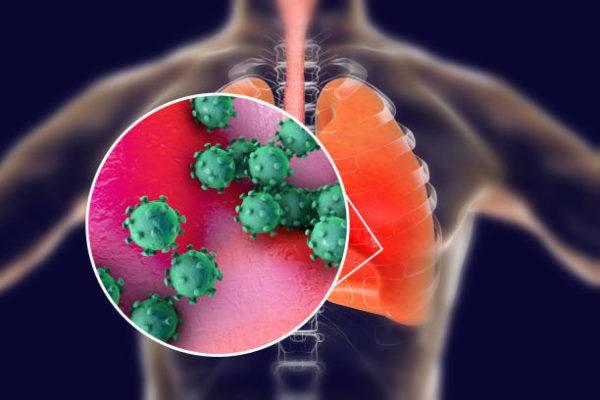 Que el coronavirus sintomas causas prevencion tratamiento