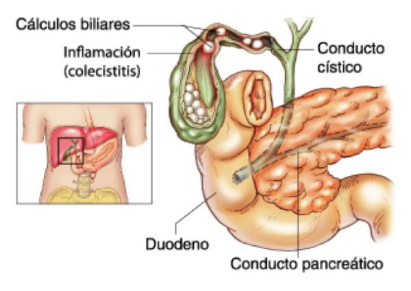 que-es-colelitiasis