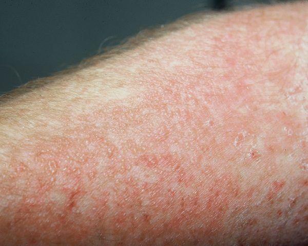 que es dermatitis