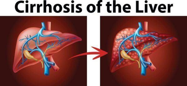 Que es el higado graso cirrosis hepatica