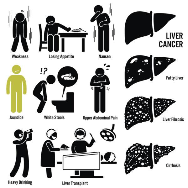 Que es el higado graso esteatosis hepatica